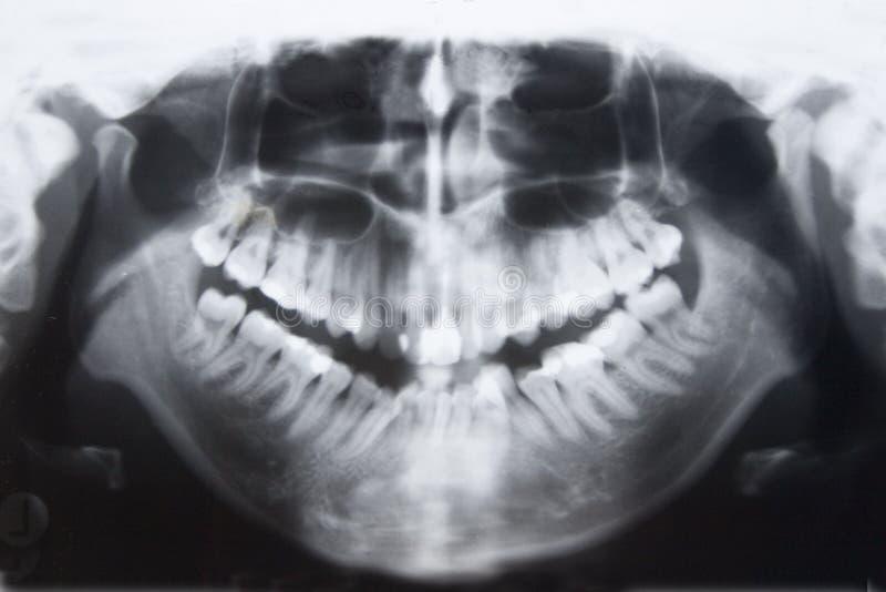 Panorama de los dientes fotografía de archivo libre de regalías