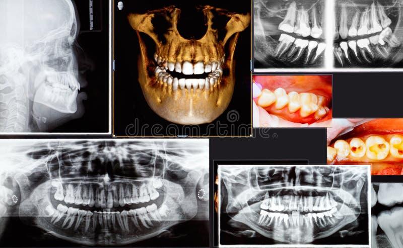 Panorama- och tand- röntgenstråle 3D många skott arkivfoto
