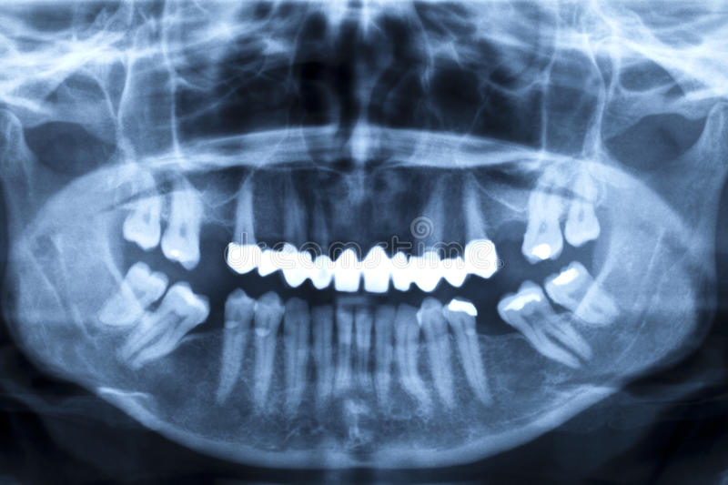Panorama x-ray image of a human jaw. And a damaged set of teeth, respectively. X-ray image with a light blue tint stock photos