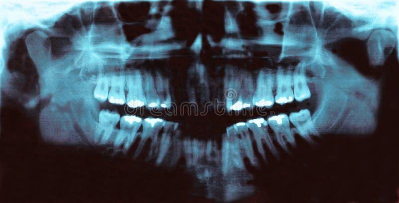 Panoramic dental radiology slide. A panoramic dental radiology slide stock image
