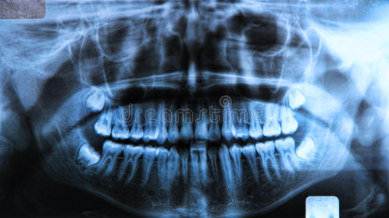 Panoramic dental x-ray stock photography
