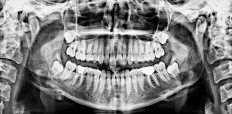 Panoramic dental x-ray. Panoramic black and white dental x-ray stock photography
