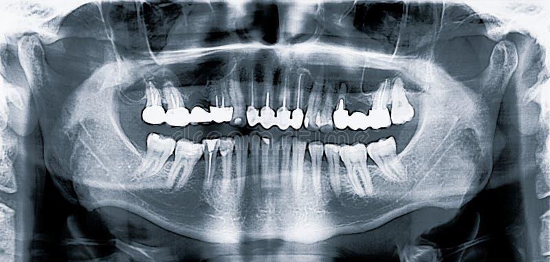 Panoramiczny medyczny stomatologiczny promieniowanie rentgenowskie obraz cyfrowy fotografia royalty free
