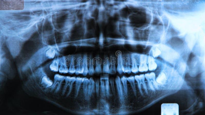 Panoramiczny stomatologiczny promieniowanie rentgenowskie fotografia stock