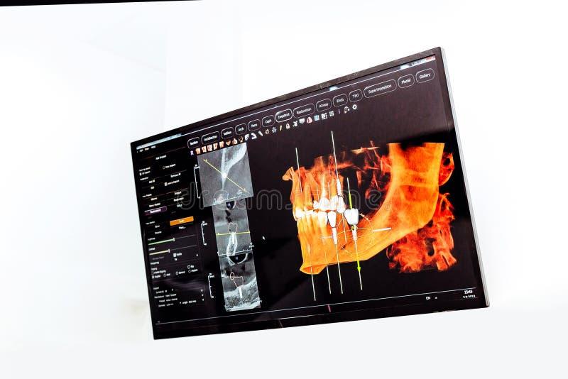 Panoramische en 3D tandröntgenstraal royalty-vrije stock fotografie