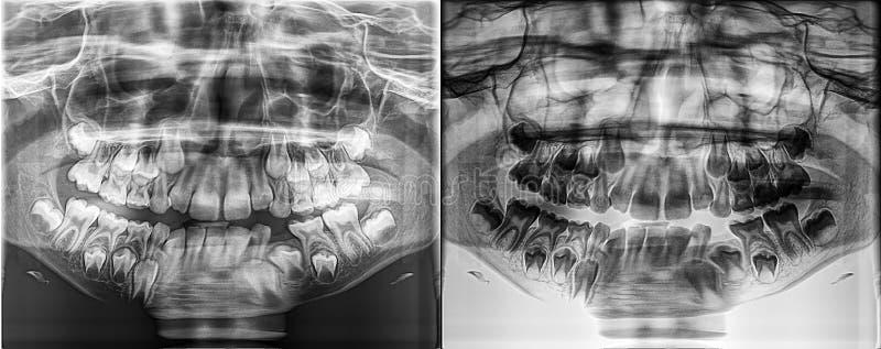Panoramische tand Vergankelijke Röntgenstraal van een kind, - melktanden die van het kaakbeen groeien royalty-vrije stock fotografie
