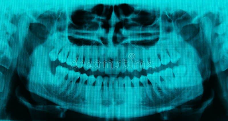 Panoramische tandröntgenstraal - 31 tanden cyaankleur royalty-vrije stock foto's
