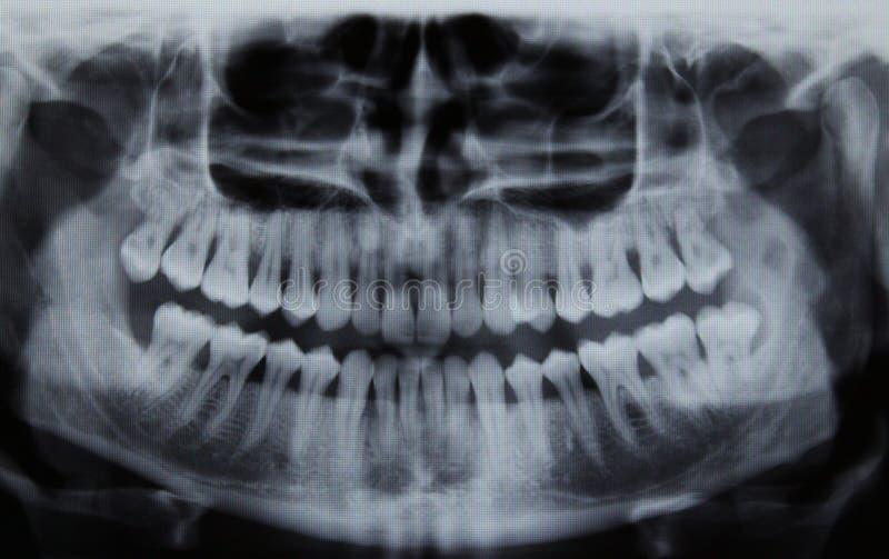 Panoramischer zahnmedizinischer Röntgenstrahl lizenzfreie stockbilder