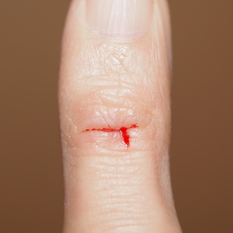 Paper cut with blood stock image