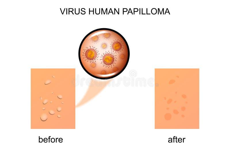 Papiloma do ser humano do vírus ilustração royalty free