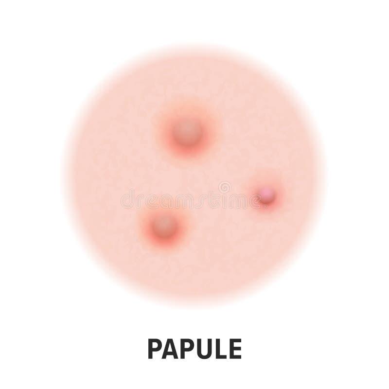 Papule διανυσματικό εικονίδιο τύπων ακμής δερμάτων Papule ακμής ασθενειών δερμάτων τύπος σπυρακιών, πόρος προσώπου comedones απεικόνιση αποθεμάτων