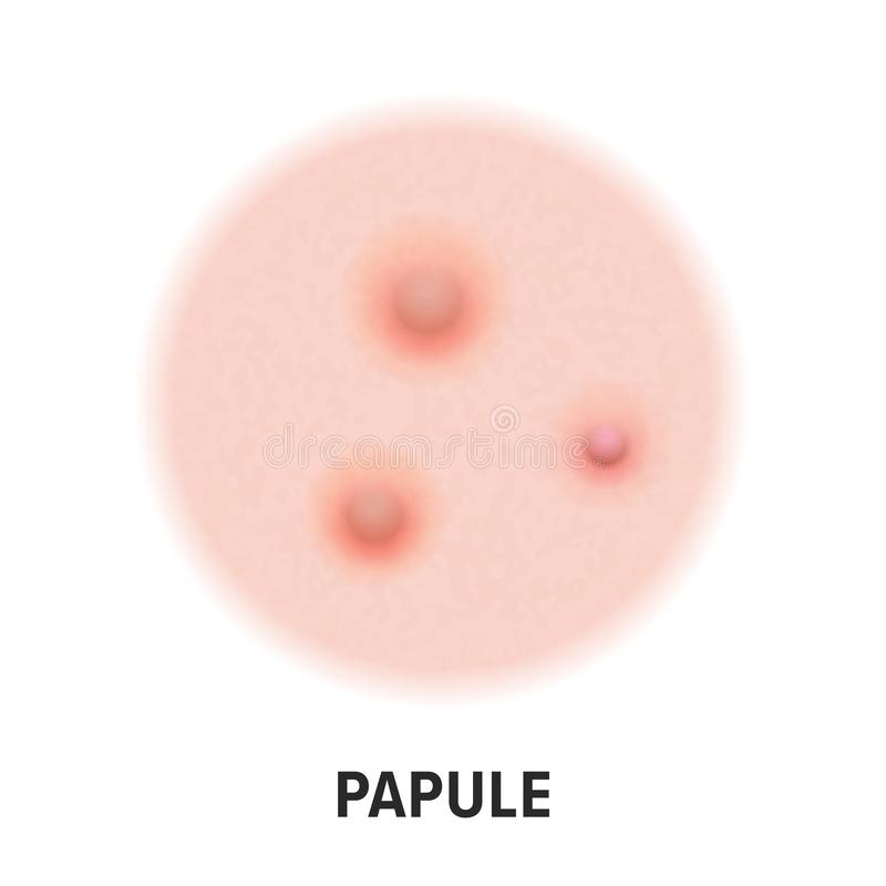 Papule skin acne type vector icon. Skin disease acne papule pimples type, face pore comedones. Papule skin acne type vector icon. Skin disease acne papule stock illustration