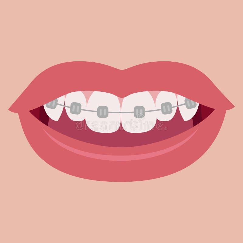 Paréntesis en los dientes Vector libre illustration