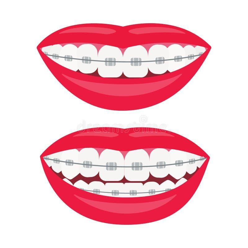 Par?ntesis dentales Sonrisa con los apoyos en los dientes Alineación de la mordedura de dientes, mordedura correcta de dientes Ma libre illustration