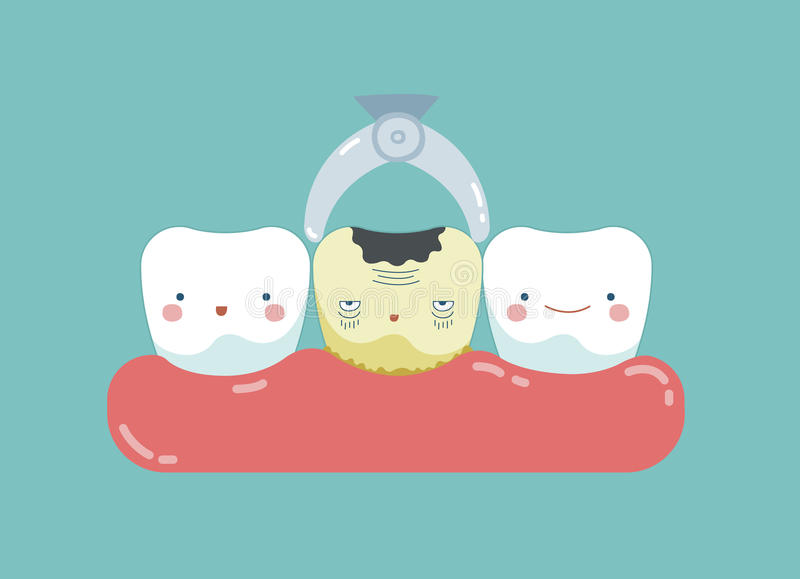 Para tomar deteriorou o dente para fora, os dentes e o conceito do dente de dental ilustração do vetor