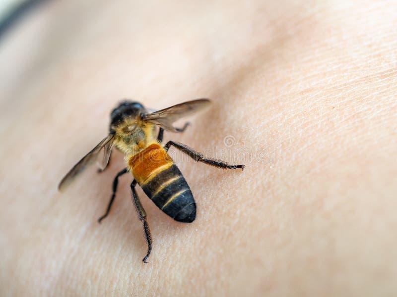 Parada en la piel, picaduras de la abeja de abeja en la mano fotografía de archivo
