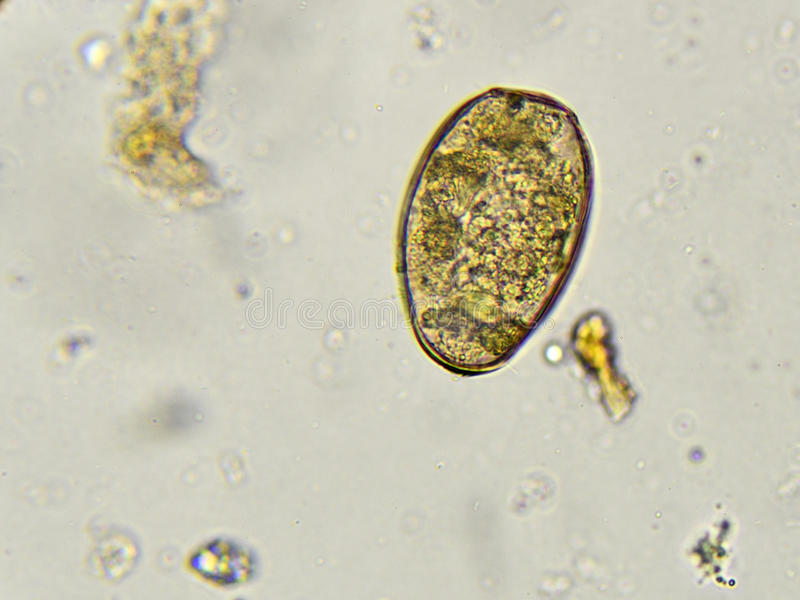 Paragonimus westermani (płuco fuks) obraz stock