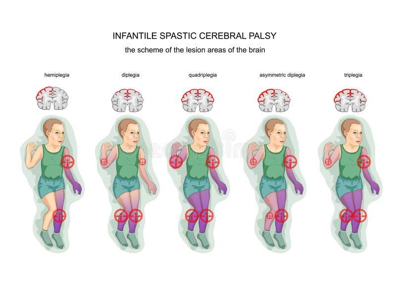 Paralisia cerebral infantil espástico ilustração royalty free