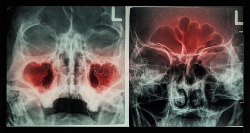 Paranasal bihåla för filmröntgenstråle: visa bihåleinflammation på den maxillary bihålan (vänstersidabilden), den frontal bihålan arkivbilder