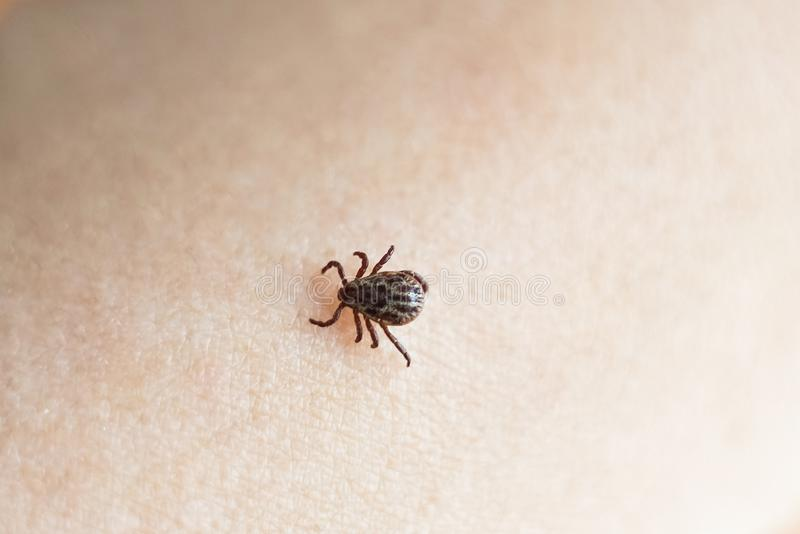 The parasite mite sits on a person's skin. infection carrier. Ixodes ricinus. A dangerous parasite and infection carrier mite. Danger of tick bite. Ixodes stock images
