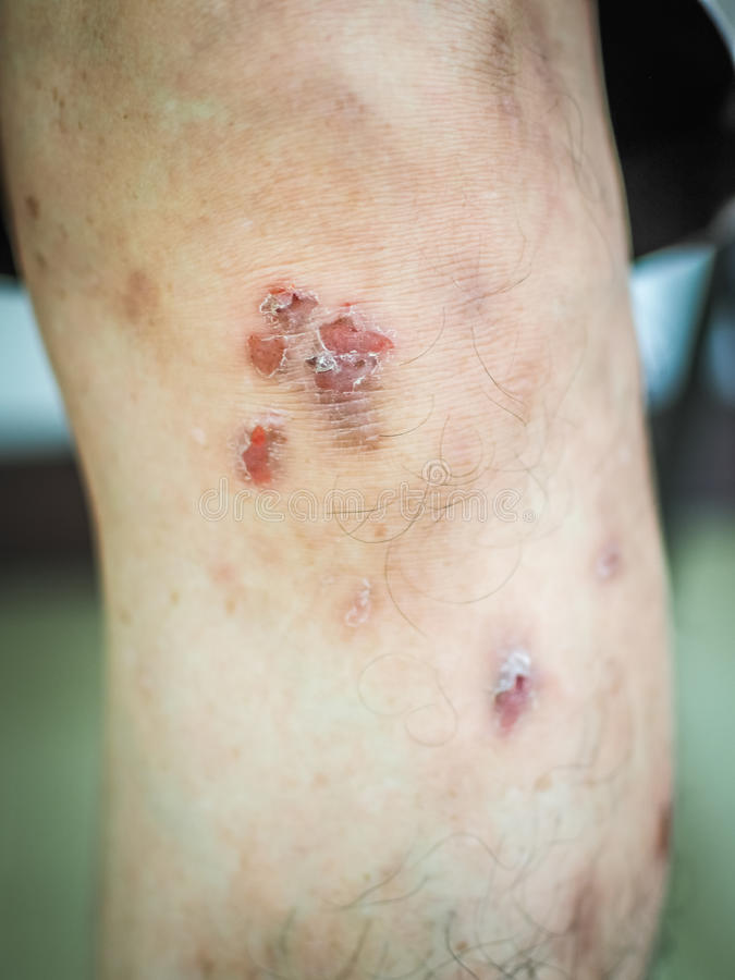 Parchy dermatolog na kolanie fotografia royalty free
