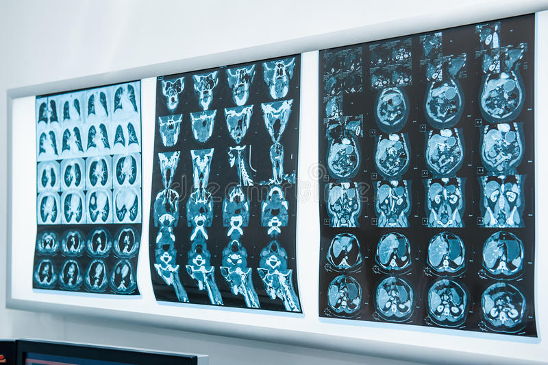 Parecchio RMI di rappresentazione di risonanza del cervello Fuoco selettivo fotografie stock