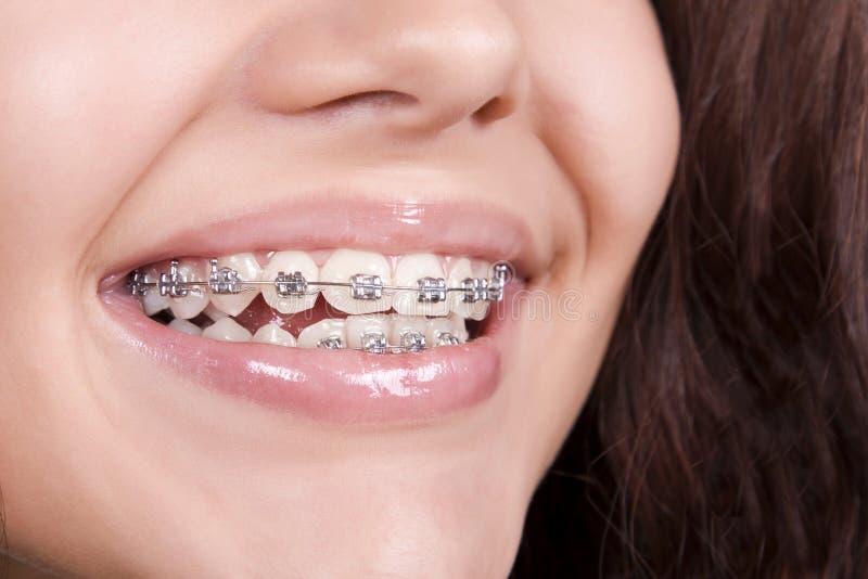 Parentesi graffe dentali fotografia stock libera da diritti