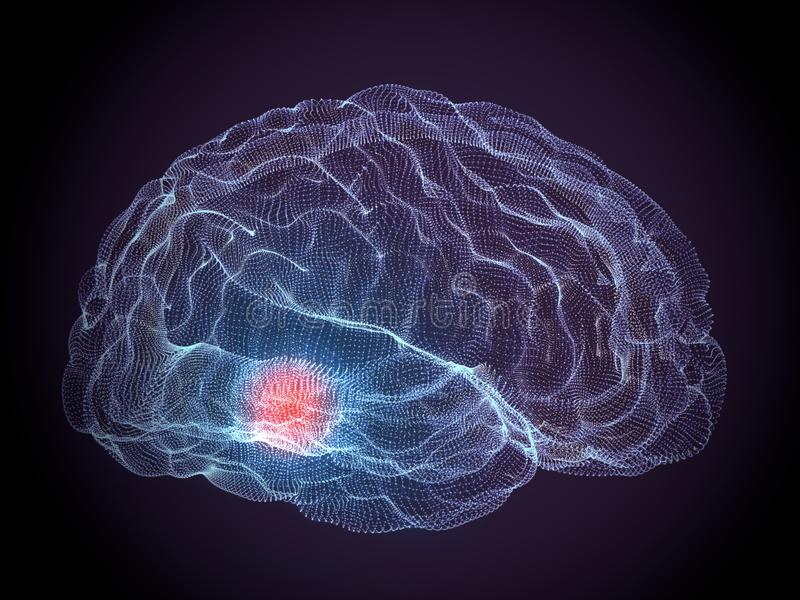 Parkinson degenerative brain diseases. On a dark background royalty free stock photo