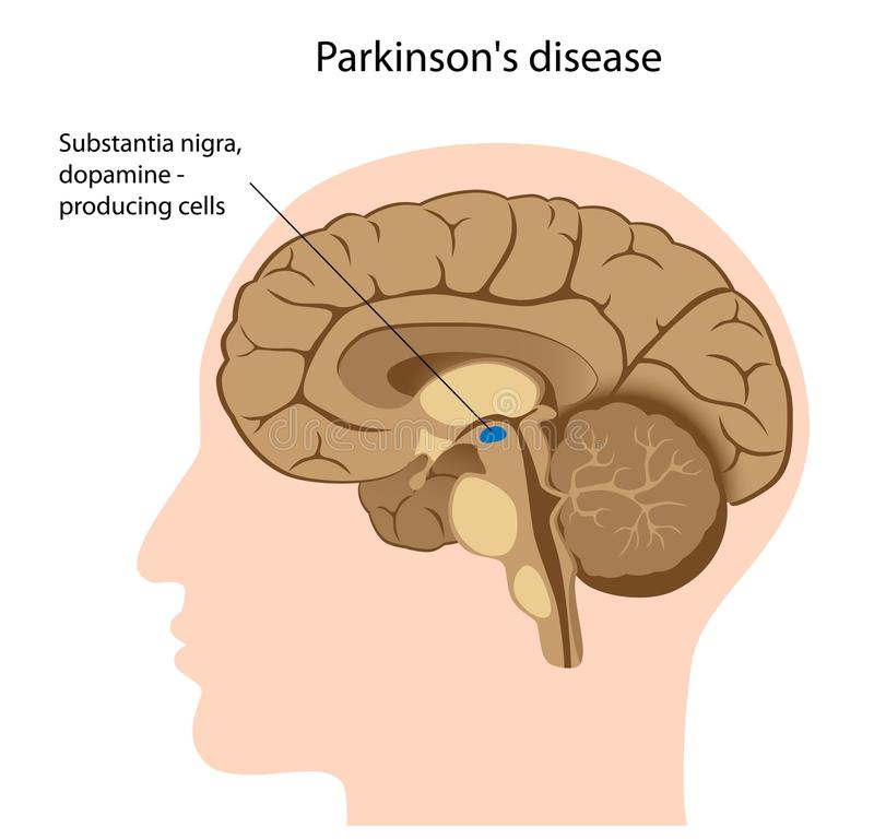 Free Parkinson S Disease Royalty Free Stock Images - 22934339