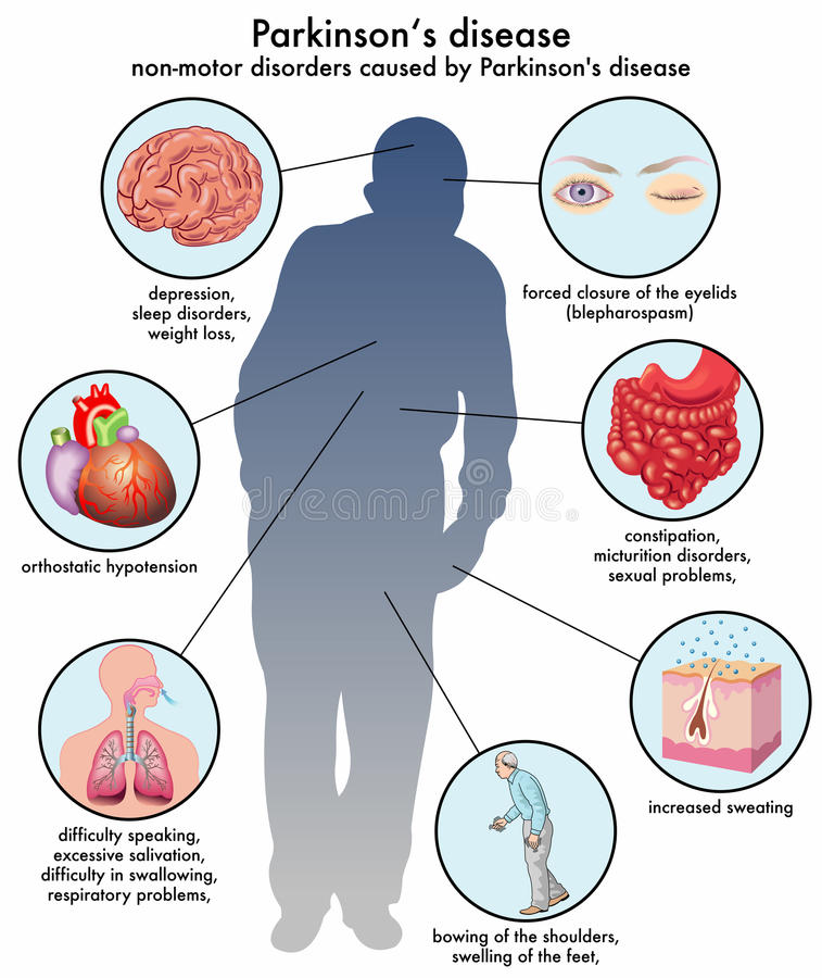 Parkinsons disease. Medical illustration of the non-motor disorders caused by Parkinson stock illustration