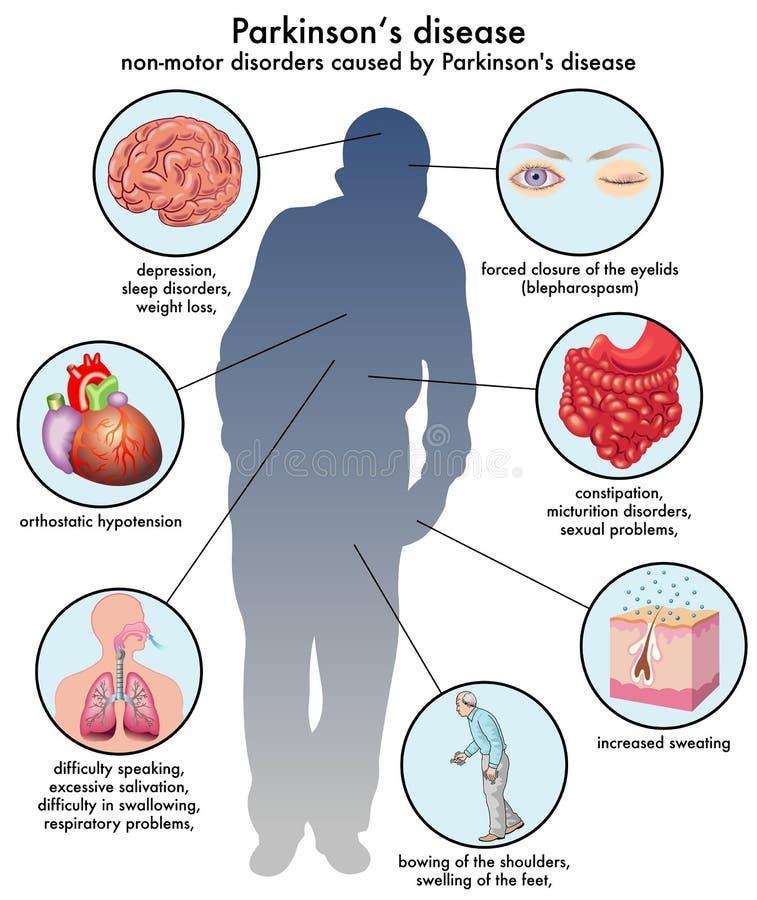 Free Parkinsons Disease Stock Photo - 40318300