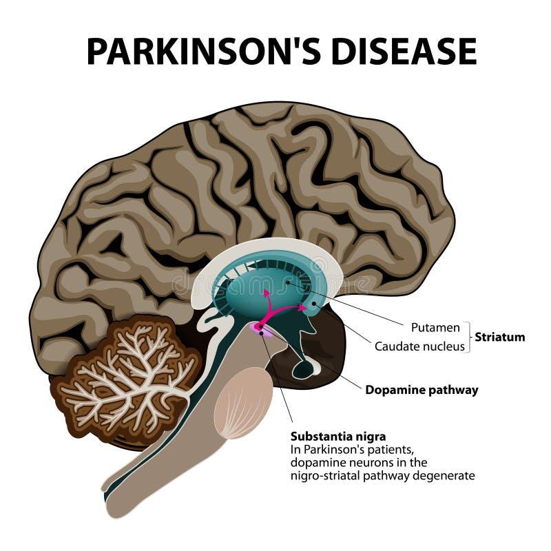 Parkinsons-Krankheit lizenzfreie abbildung