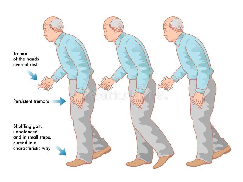 Parkinsonsziekte stock illustratie