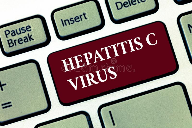 Parola che scrive il virus dell'epatite C del testo Concetto di affari per l'agente infettivo che causa la malattia di epatite vi fotografia stock