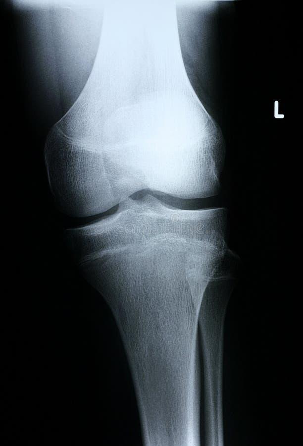 Download Parte Anteriore Ginocchio/dei Raggi X Immagine Stock - Immagine di ferita, ginocchia: 202377