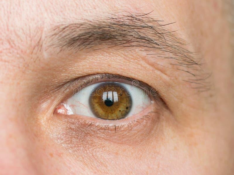 Parte da cara de um homem novo com uma cicatriz na sobrancelha imagem de stock royalty free