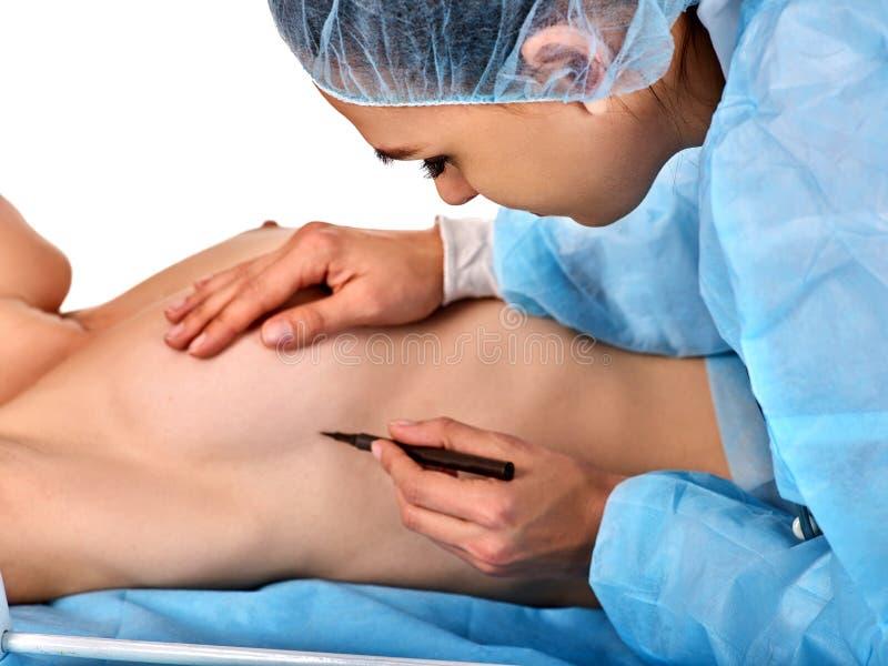 Parte del corpo nuda femminile Protesi del seno e chirurgia plastica immagini stock