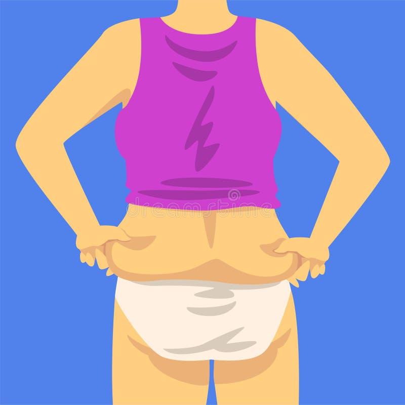 Parte del cuerpo gordo femenino, figura humana después de la pérdida de peso, visión trasera, obesidad y vector malsano de los pr ilustración del vector
