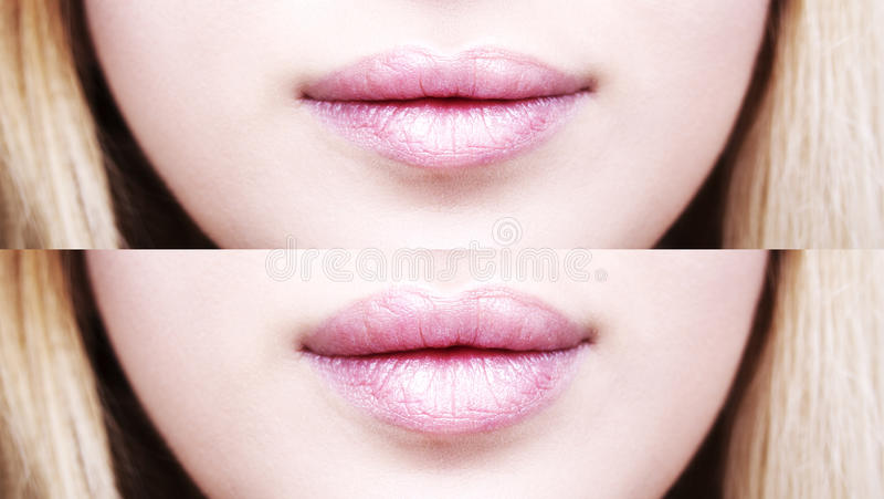 Parte del fronte, alto vicino della giovane donna Labbra grassottelle sexy dopo l'iniezione del riempitore immagine stock