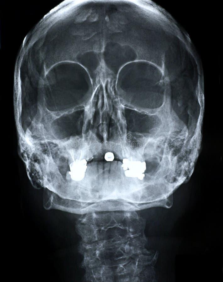 Parte dianteira do raio X/face foto de stock