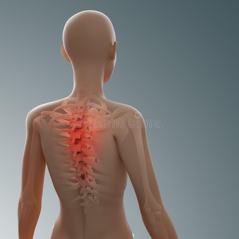 Parte posterior y lesión de la espina dorsal stock de ilustración
