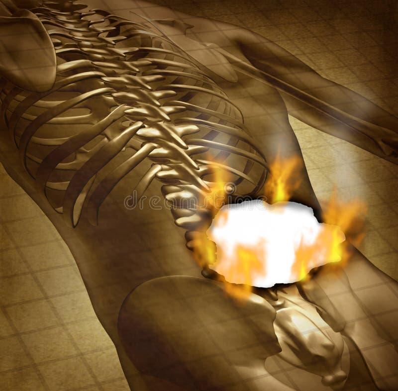 Parte posteriore dolorosa umana illustrazione di stock