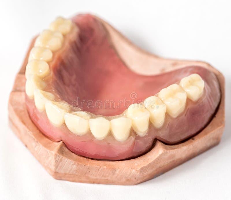 Parte superior imediata da dentadura imagem de stock royalty free