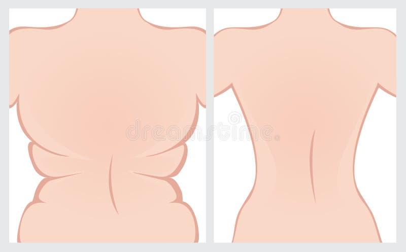 Parte traseira da gordura antes e depois do tratamento ilustração stock
