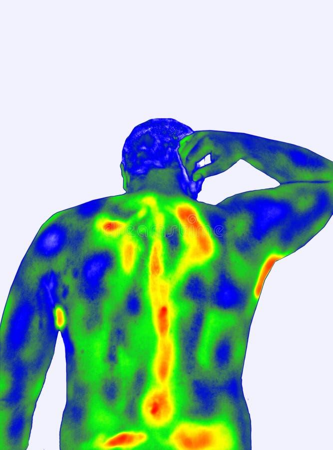 Parte traseira do ` s dos homens da imagiologia térmica imagem de stock