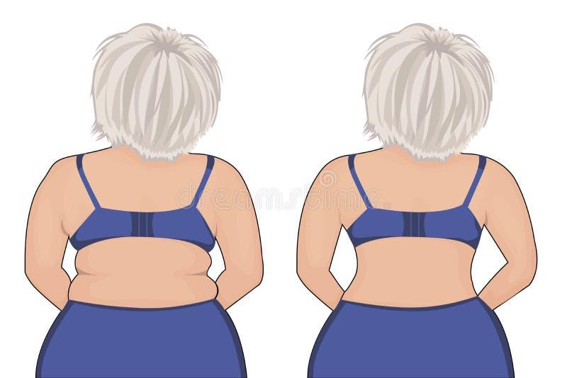Parte traseira gorda e magro do ` s da menina Thig gordo liposuction Antes e depois Correção do corpo da mulher ilustração royalty free