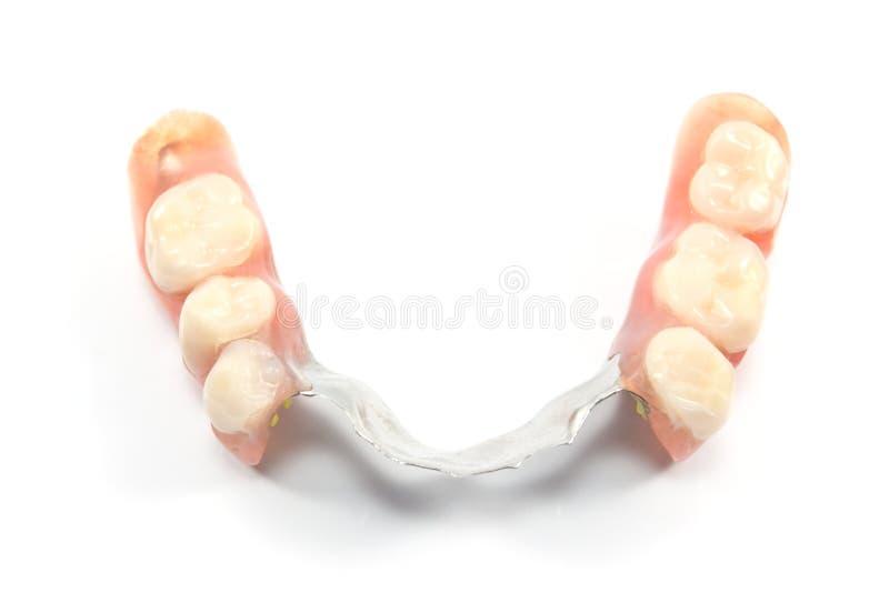 Partial denture upper side - dental prosthetics. On white royalty free stock image