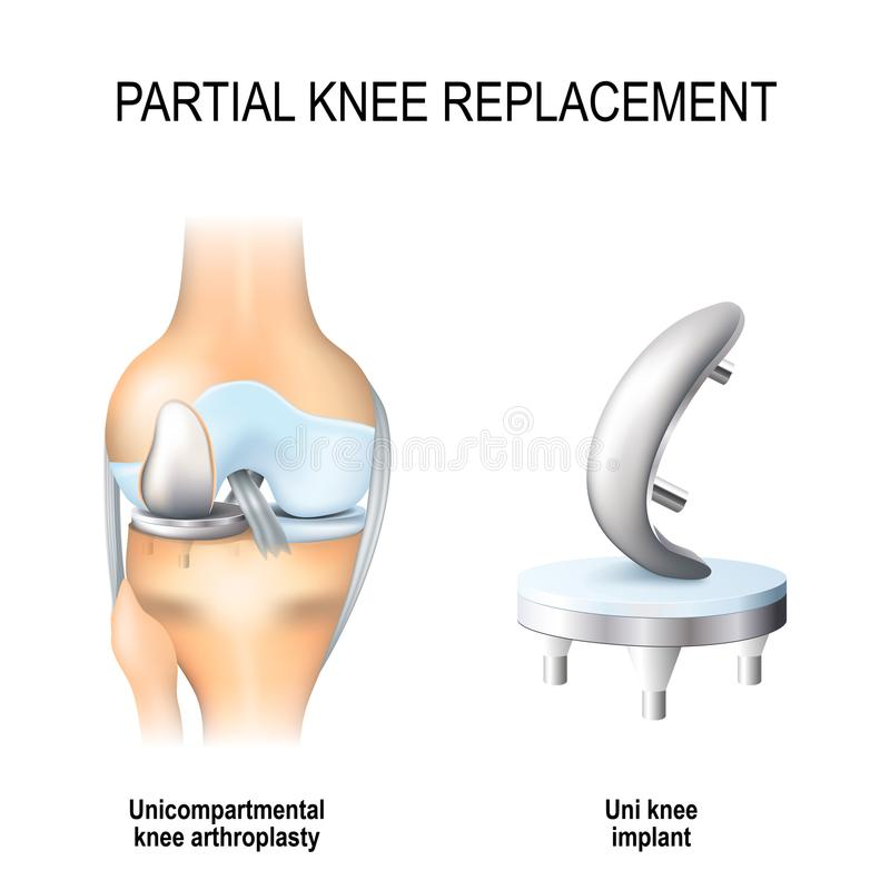 Partial knee replacement. Unicompartmental knee arthroplasty and uni knee implant stock illustration