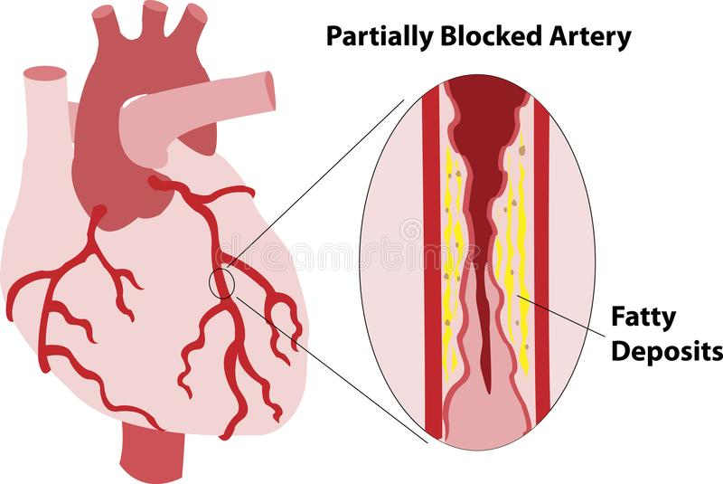 Partially Blocked Coronary Artery stock illustration