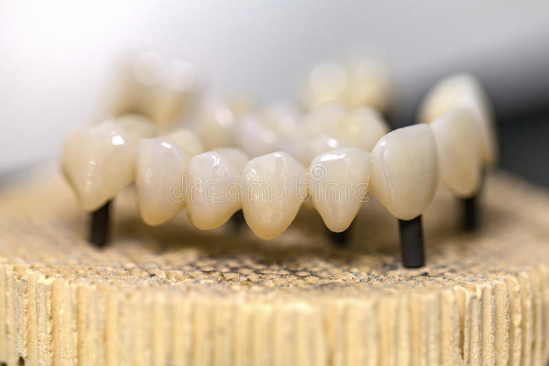 Passerelle en céramique dentaire photographie stock libre de droits